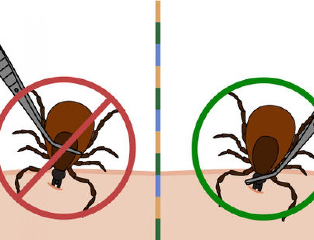 5 Steps to Removing a Tick